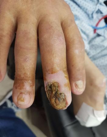 ריקבון באצבע